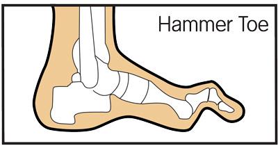 Toe anatomy joint